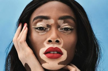 Pesoa Winnie Harlow di Barisan Angels Victoria Secret